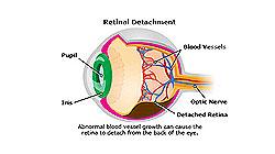 Joseph Eye Hospital (Retinal Detachment)