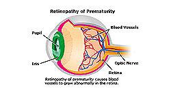 Joseph Eye Hospital Causes of ROP (Retinopathy of prematurity )